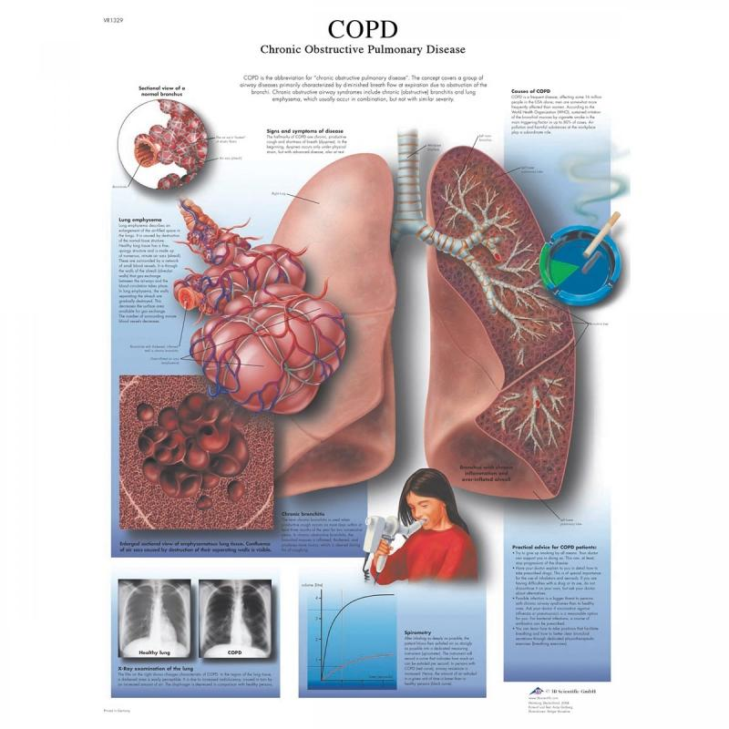 All Products - Wandkaart: COPD Chronic obstructive pulmonary disease