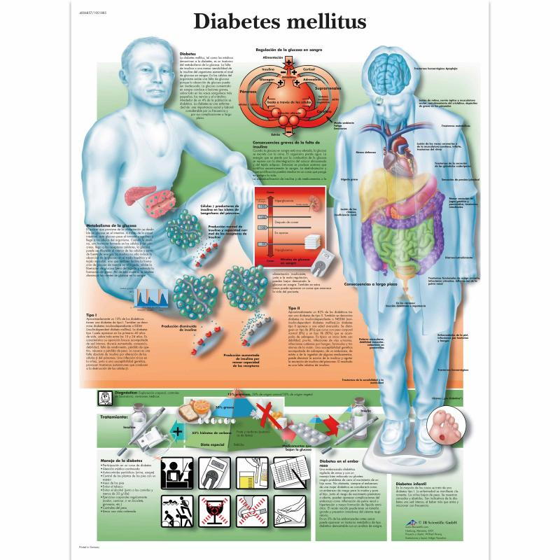 All Products - Wandkaart: Diabetes Mellitus