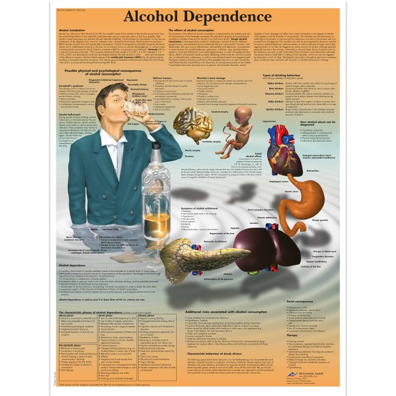 All Products - Wandkaart: Alcohol Dependence